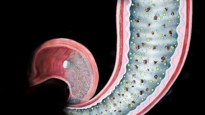 Χειρουργική επέμβαση μέσα σε ένα χάπι, πιθανή θεραπεία για τον διαβήτη